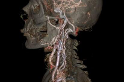 ComplexeCarotis-hals-anatomie